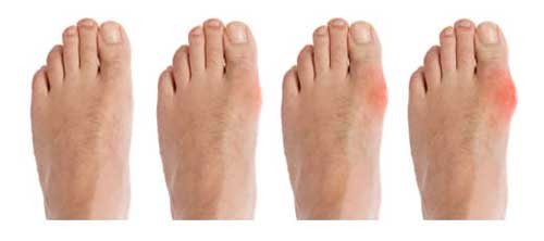 simple gout prevention diet will drinking water help gout treatment for finger gout